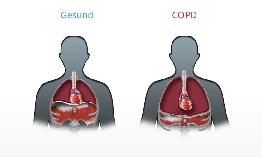 Konsequenzen der COPD - Überblähung